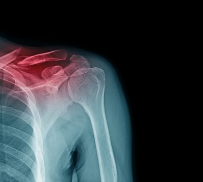 Is Surgical Treatment for a Clavicle Fracture Necessary?