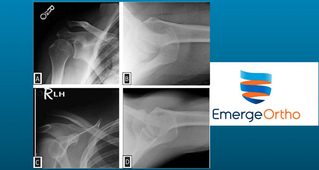 EmergeOrtho Physicians Publish Study in Journal of Shoulder and Elbow Surgery