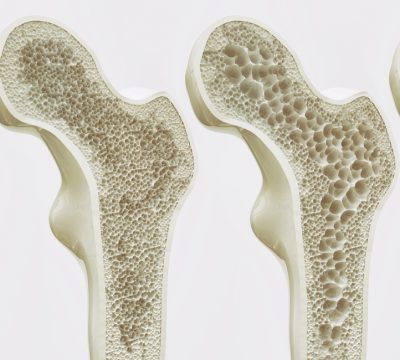 What Is Osteoporosis? Your Ultimate Prevention Guide