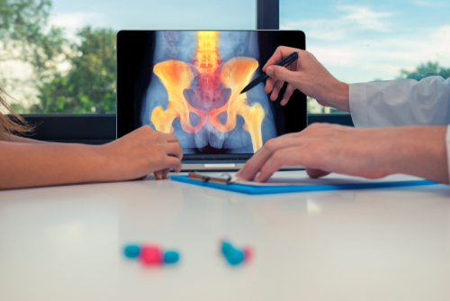 A doctor reviews a patient X-ray image of an arthritic hip utilizing a digital tablet, seated across from a male patient.