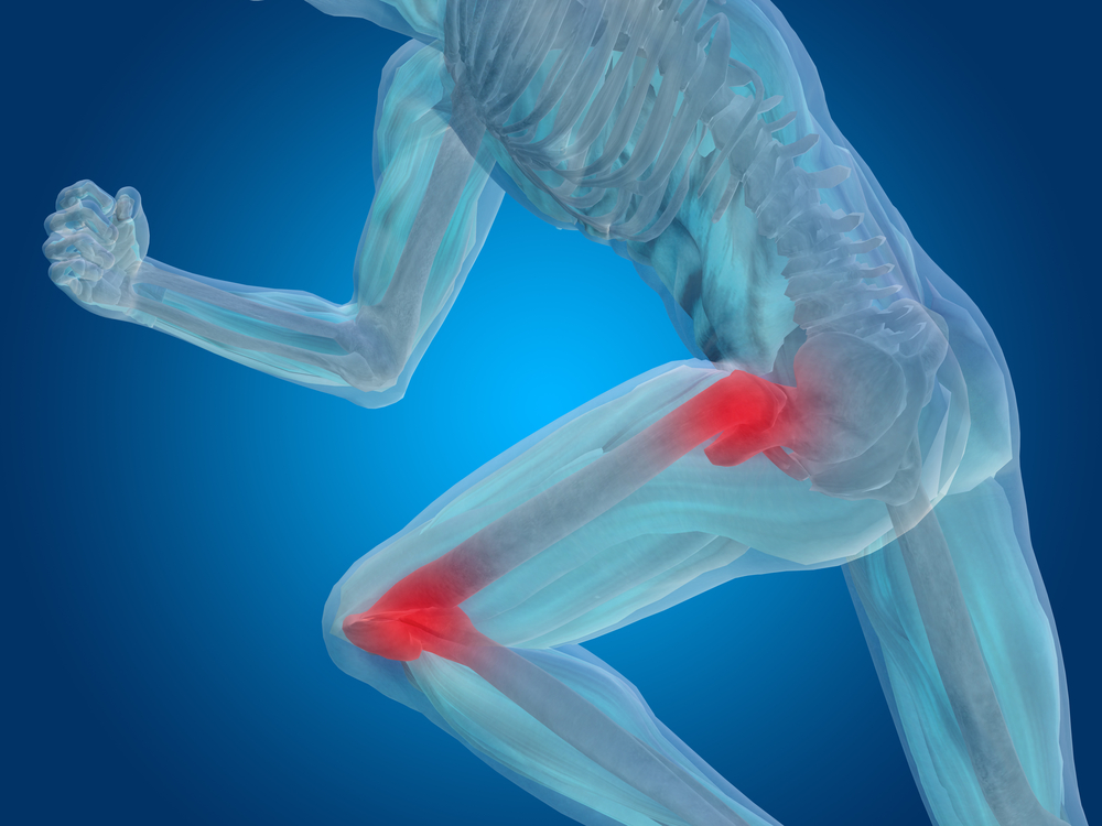 The Active Person's Guide to Hip and Knee Osteoarthritis Prevention