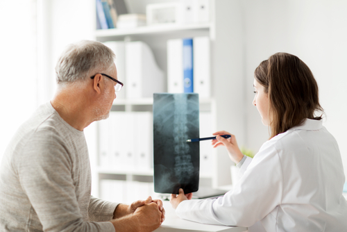 Female doctor showing male patient his herniated disc on an x-ray of his spine.