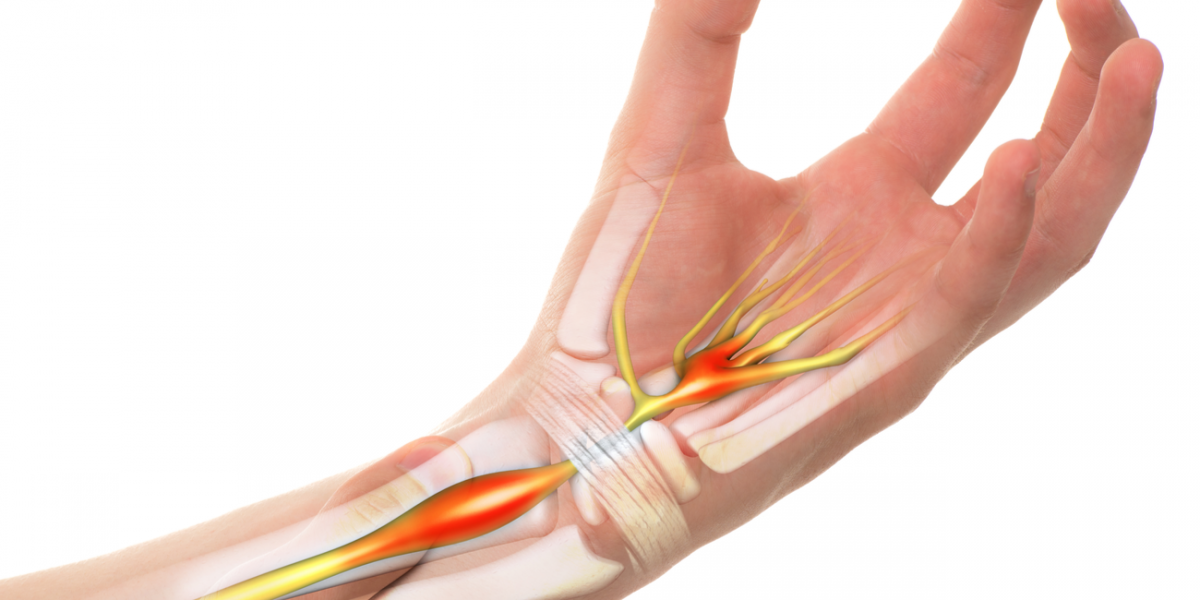 Four Carpal Tunnel Exercises to Relieve Discomfort