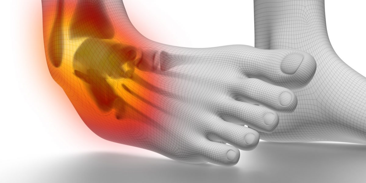 How to Avoid Chronic Ankle Pain after a Sprain