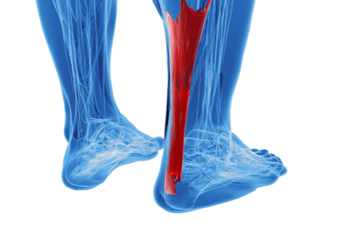 A 3D image depicts an Achilles tendon highlighted in red up the back of the calf muscle.