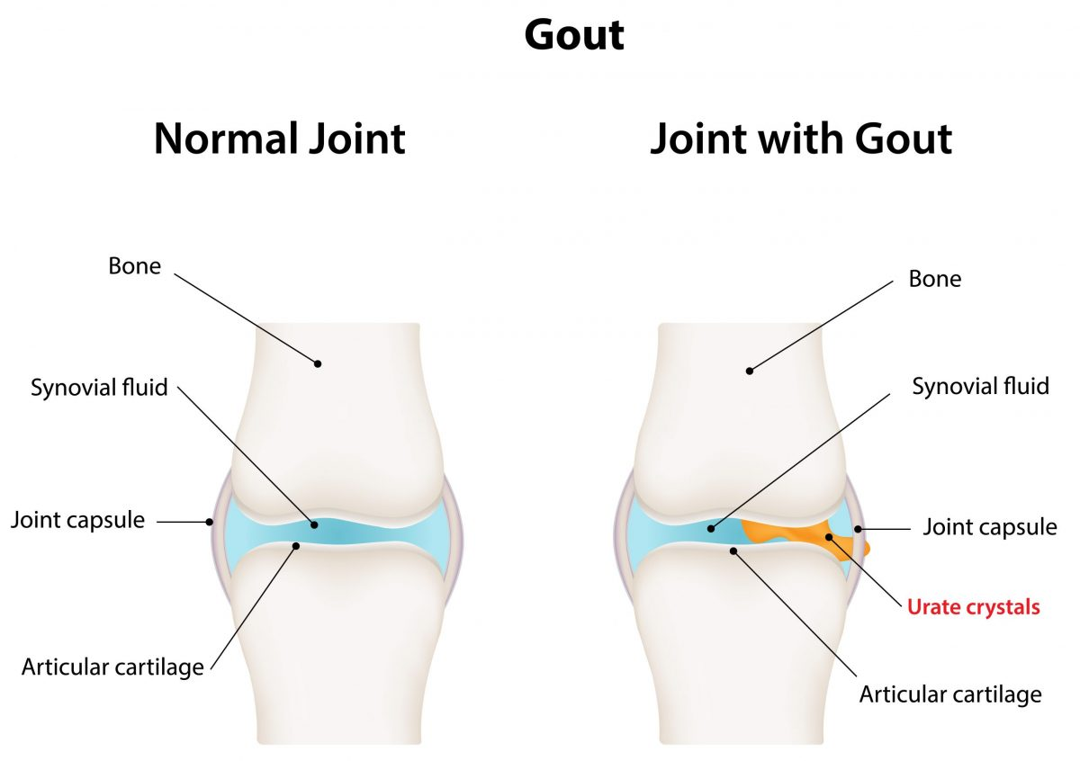 Vector illustration comparing normal joint and joint with gout that shows a buildup of urate crystals in the joint capsule.