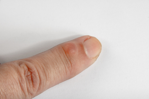 An index finger is pictured with a small round, reddish ganglion cyst near the fingernail bed.