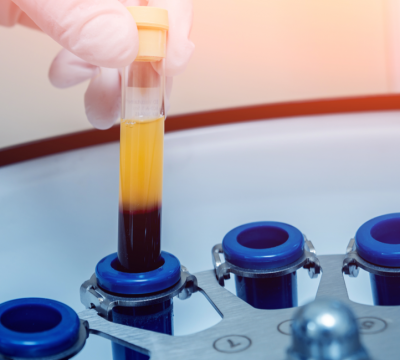 Can PRP and Stem Cell Treatment Help You?