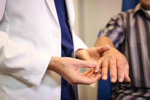 An orthopedic hand specialist examines a male patient's hand for the presence of trigger finger.