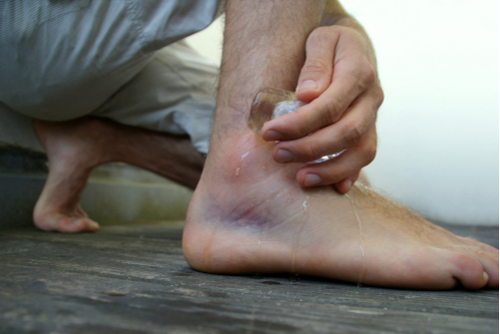 A man holds ice to his badly bruised and swollen third-degree sprained ankle.