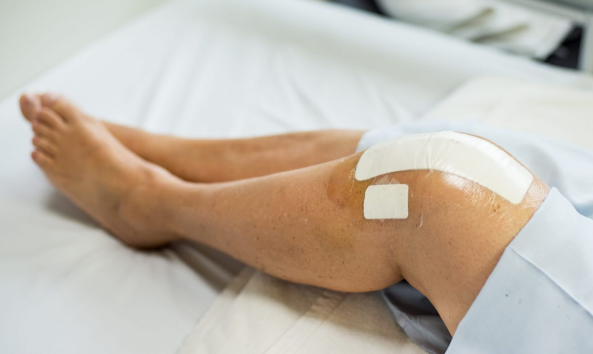 A female patient's legs revealing a bandage over an incision for a total knee replacement surgery.